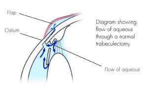Flow_of_Aqueous