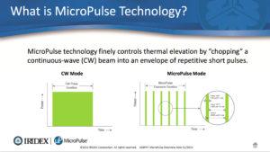 laser micropulsato a lunghezza d'onda gialla (Iridex IQ 577)
