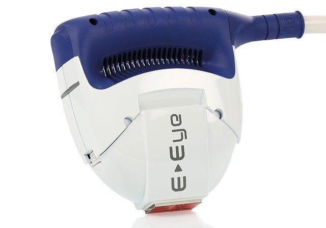 e-eye luce pulsata